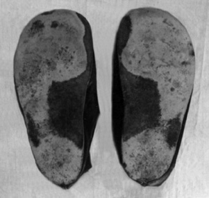 Wear on Shoe Soles