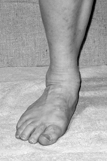Pronated Ankle